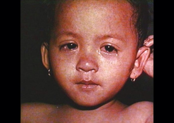 Child with measles. Eyes of child with measles. CDC 1999 Barbara Rice